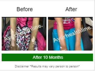 de Ayurhealthline- Vitiligo Specialist Clinic