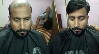 Raj Hair Solution